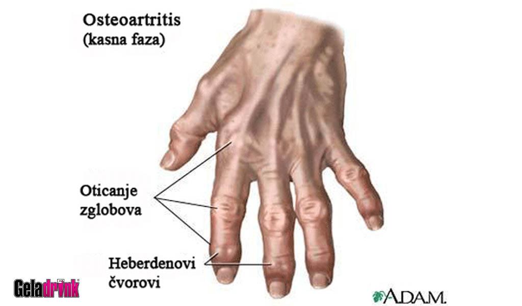 geladrink artroza